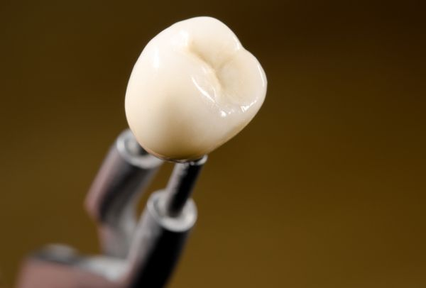 General Dentistry: What Is A Dental Crown?